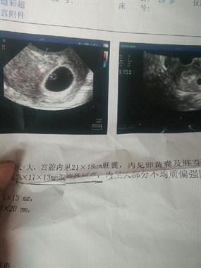 社友求助:意外怀上二胎,跟老公僵持50天他坚持打胎