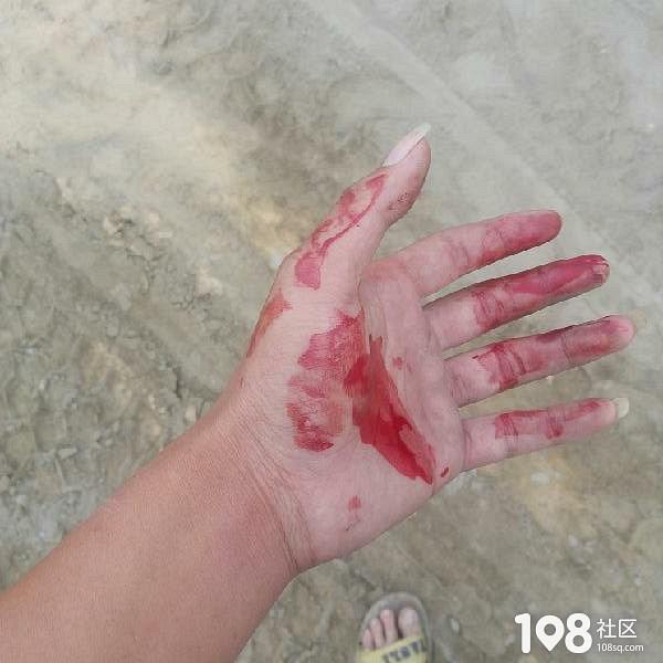 看不惯男人打老婆,平湖小哥好心拉架却被一拳打到唇裂