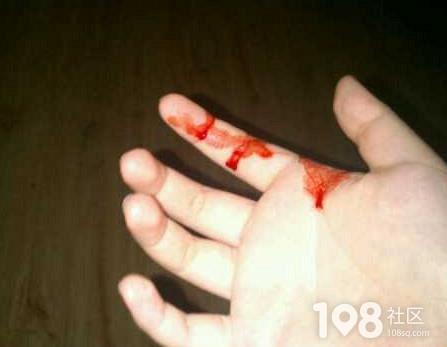 女子徒手抓老鼠被咬得鲜血直流,怎么办要打针吗?