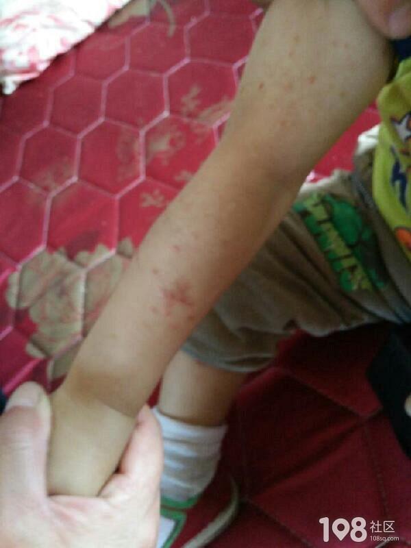平湖妈妈求助,2周岁小宝身上一大片的红疹该怎么办?