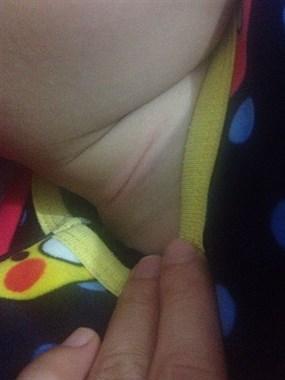 惊吓!孩子在玉屏公园玩,脖子被别人风筝线拉出1道长口…