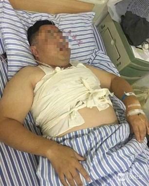 景德镇一小区业主突遭4人围殴打断肋骨 2人被刑拘2人在逃