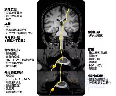 脑萎缩能治吗?中医专家告诉你