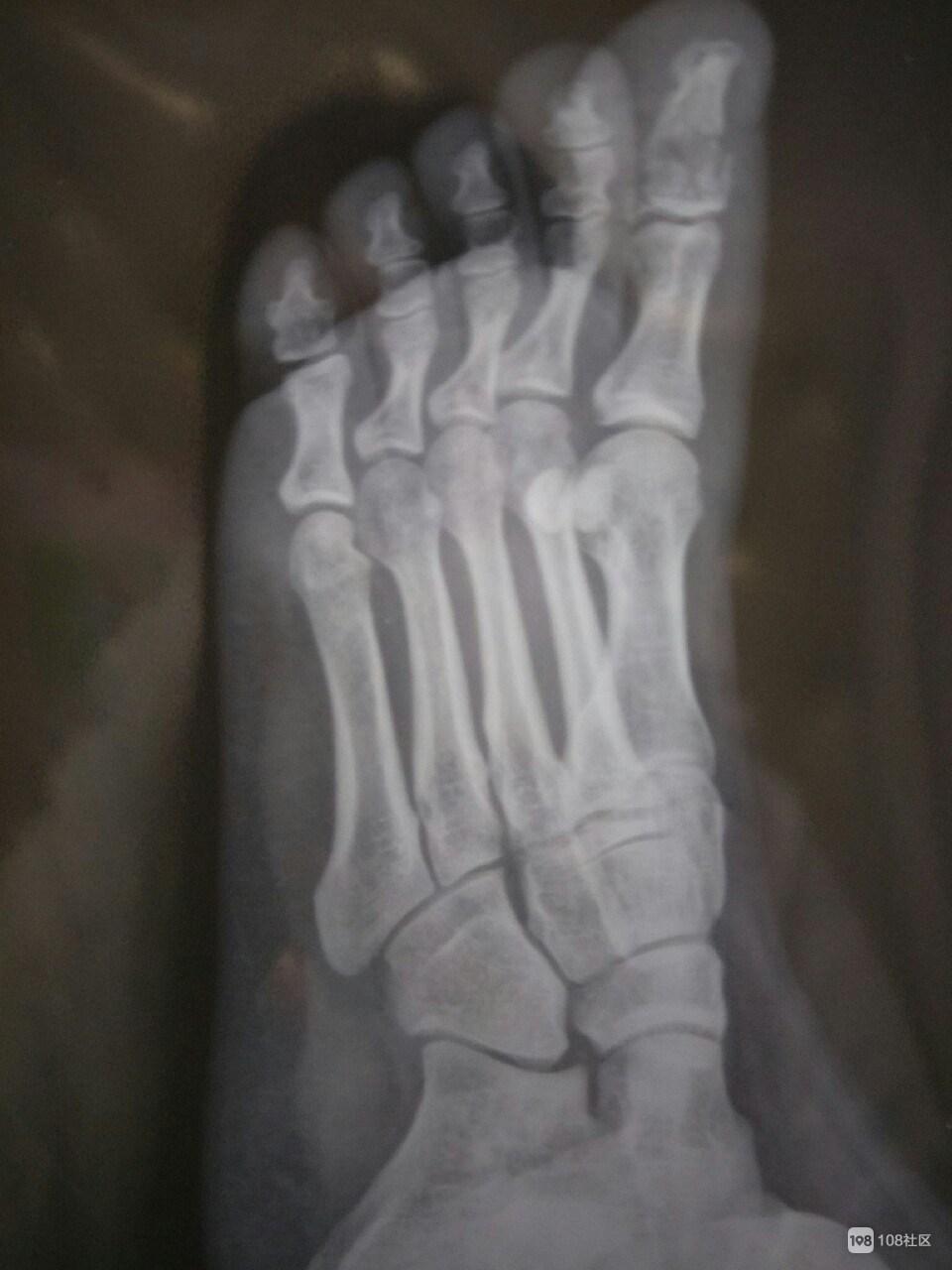 厂里干活被一百多斤的铁饼子压到,大脚趾粉碎骨折一晚上没睡