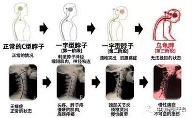 颈椎酸疼难忍,一个小动作就能治,关键还能降血压!