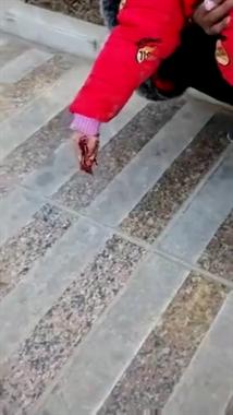 两小女孩放鞭炮引下水道爆炸,一女孩右小拇指被炸断哀嚎