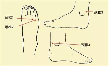 """对治颈椎病,常按摩两个""""脖子""""(手脖子、脚脖子)"""