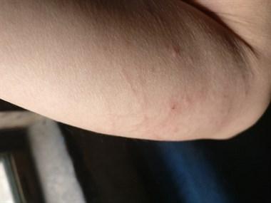 皮肤发痒发肿怎么治疗?求懂的给点药方