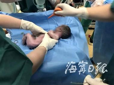 超感动!38岁孕妇早产,父亲放弃孩子前说了句话,奇迹发生