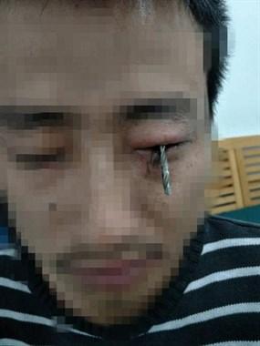 """绍兴男子眼睛真有一枚""""眼中钉""""!视力要看后期恢复情况"""