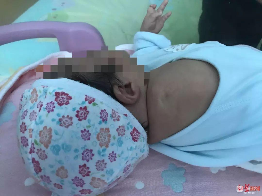 心痛!胎儿产检显示双手握拳,出生却没有右臂!医院承认过失……