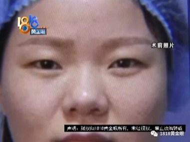 """尴尬!杭州女子下血本花7万""""变美"""",结果一年不敢回老家..."""