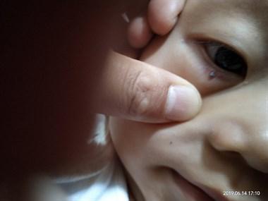 孩子眼角突然长了颗黑斑,社友的话让宝妈后怕万分!