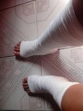 脚骨折50多天,脱拐后发现不会走路!德清女子惊慌求帮助