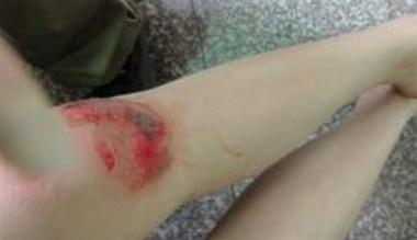 女儿突然晕厥砸向地面,摔伤背部大片血迹!熬夜玩手机的错?