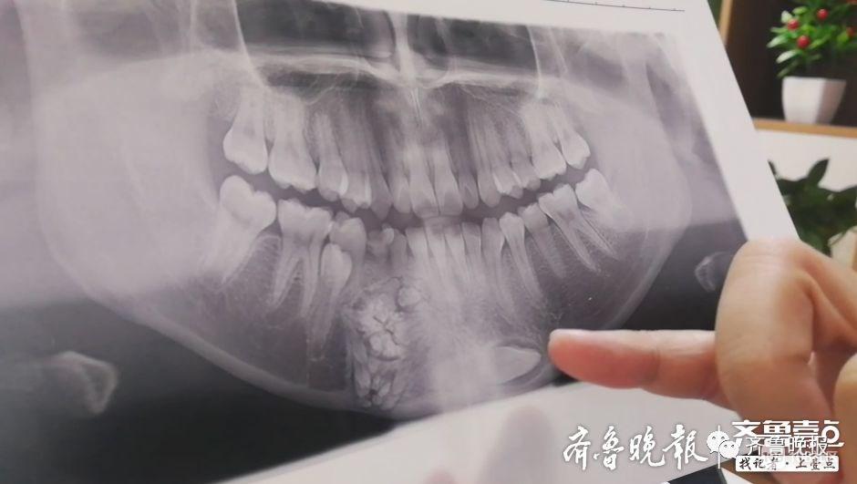 """不得了!医生从14岁女孩嘴里,刮下来上百颗""""牙齿""""…"""