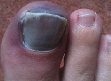 求助!指甲变黑发炎,手脚指甲全掉光!医院检查也查不出问题