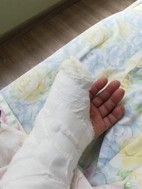 德清男子割破手以为是破伤风,10天后手指头不会动了…