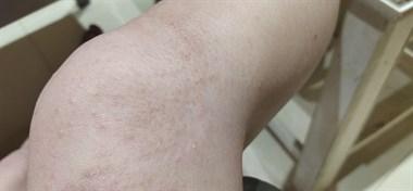 瓷都美女腿上密密麻麻长出小水泡 越抓越痒!怎么回事?