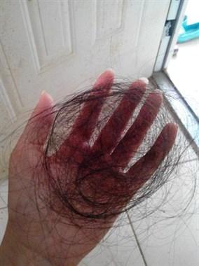 失眠焦虑!才27岁就开始脱发,洗一次头掉200多根