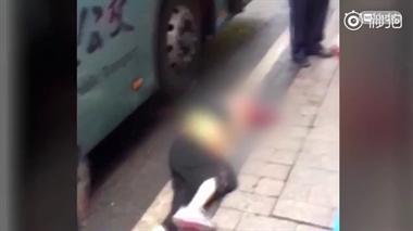 千万别追!71岁老人站台跌倒,被进站公交压断手臂