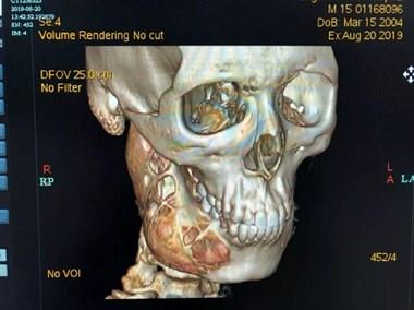 """可怕!15岁男孩牙疼1年多,脸部骨头被""""吃""""掉一半"""