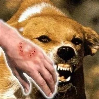 可怕!2个月海宁犬伤门诊2767人次!伤人最多是这种狗