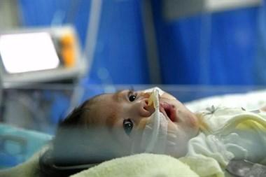 66天大女婴换上4岁男童心脏 创造的纪录令人泪朦胧!