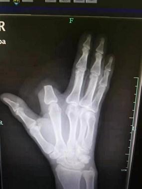 男子被五步蛇咬伤,竟一刀斩断手指!直言:保命要紧