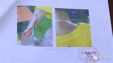 30岁女儿被亲妈抄铁棍暴打,皮开肉绽!原因令人无语