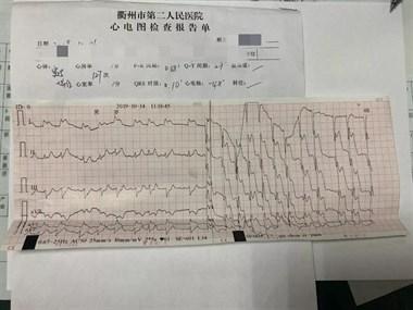 市二医院一男子胸痛去检查竟突发昏迷,抢救1个多小时后…