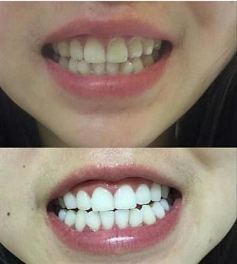 大黄牙们,这里有几招美牙方法教你哦