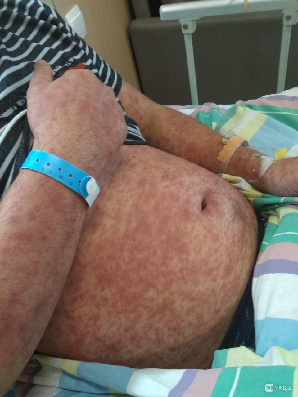 绍兴宁全身长红斑!人发烧还痒,医院也查不出是啥病