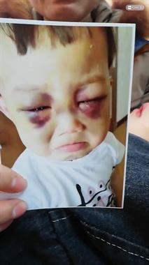 令人发指!3岁男童长期遭继母拳打、嘴咬…伤痕累累!