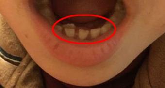 """瓷都7岁女童长了""""双排牙"""" 惊呆家长!原来是因为…"""