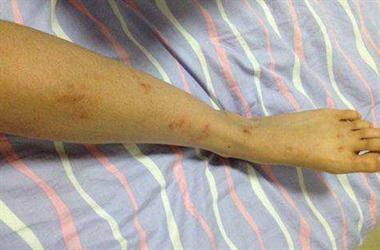 女儿患上过敏性紫癜,一星期还不见好转!紧急求助