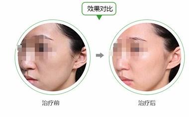 面部填充,到底是玻尿酸好还是自体脂肪好?