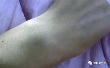 多次投诉快递员,深圳女子遭上门暴打!警方处罚结果来了