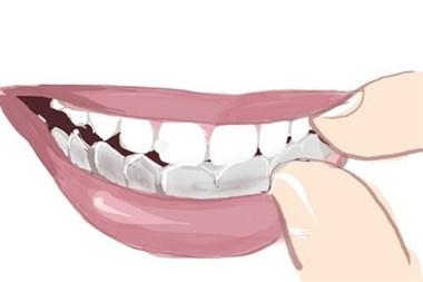远离整牙误区,关注牙齿健康