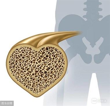 骨质疏松的人,少吃3物、常做3事,稳定骨量,骨质疏松平稳度过