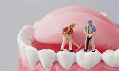 在家呆了这么久,还不如去做牙齿美白