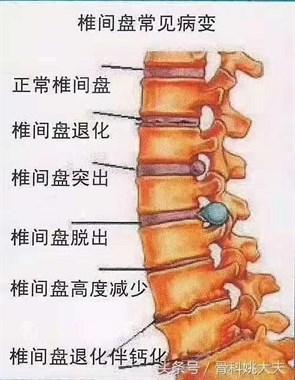 但您了解一下腰椎病