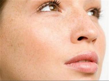 夏季使用雪元玑秘祛斑霜 大黄皮也能变成水光肌!