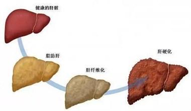 得了脂肪肝,还能不能吃肉?