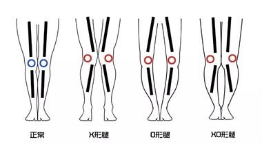 你知道你是什么腿型吗?(本文全手打,希望能帮助到你)