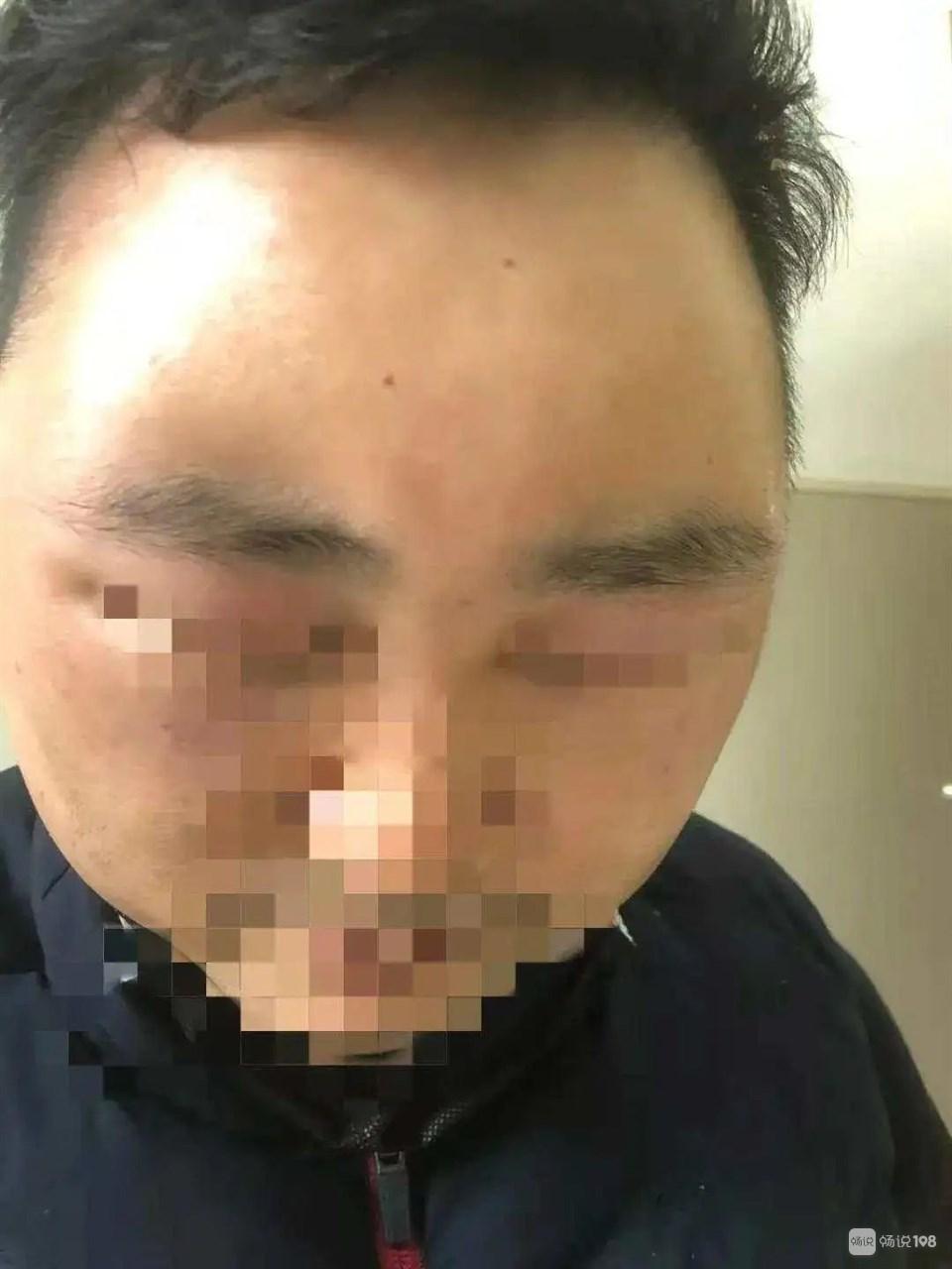 """绍兴男子自配""""秘方""""治疗脱发,结果悲剧了!"""