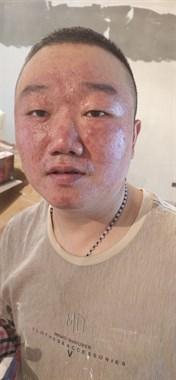 我一个朋友脸部皮肤问题,舟山附近哪家医院皮肤科效果好